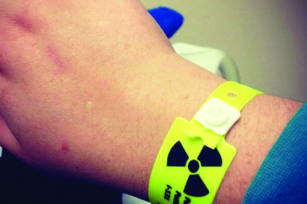 What to Know About Radioactive Iodine Therapy